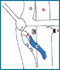 Figura 3. Caso exitoso de bypass