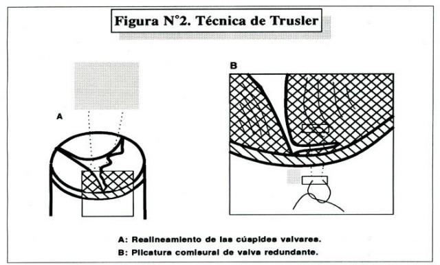 Figura 2. Tratamiento de los aneurismas del seno